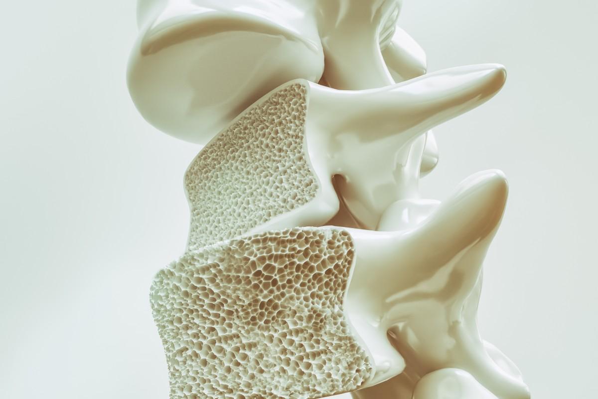 Osteoporose: Vermeiden Sie die 10 häufigsten Risikofaktoren