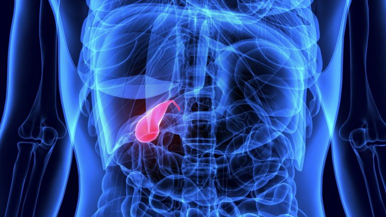 Gallenblase: Erhöhtes Krebsrisiko nach Operation