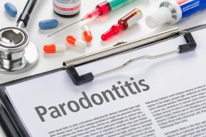 Parodontitis ist heute die häufigste Ursache für Zahnverlust