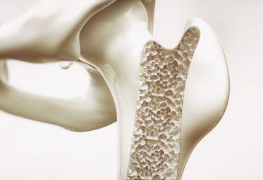 Obst und Sport als Vorbeugung gegen Osteoporose