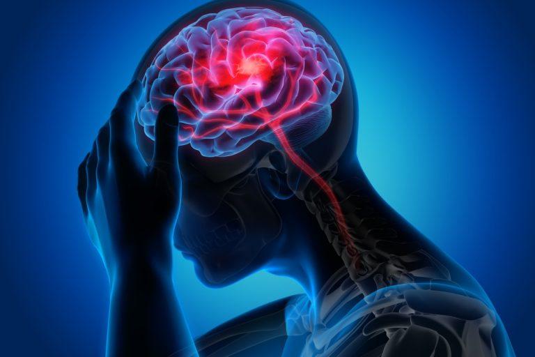 Schlaganfall: Wie Sie vorbeugen, erkennen und helfen