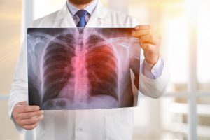 Lungenentzündung: Impfung und Zink bewahren Sie vor der tödlichen Gefahr