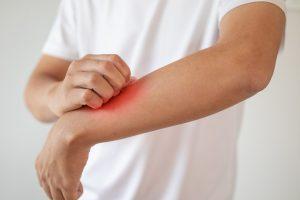 Stutenmilch besänftigt Neurodermitis-Haut