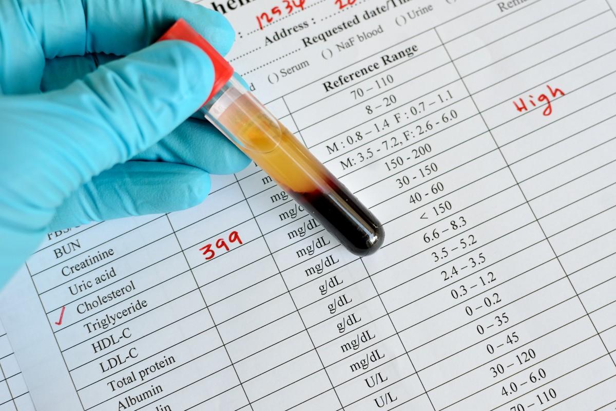 Cholesterin: Forscher bauen gutes HDL-Cholesterin