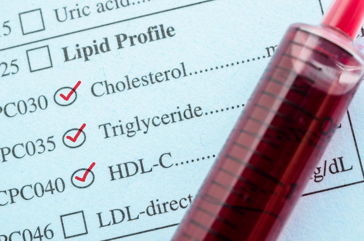 Cholesterin: Wie hoch darf der Cholesterinspiegel sein?