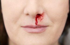 Gesundheit: Bewährte Hausrezepte bei Nasenbluten