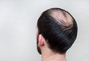 Haarausfall: So stärken Sie Ihre Haare
