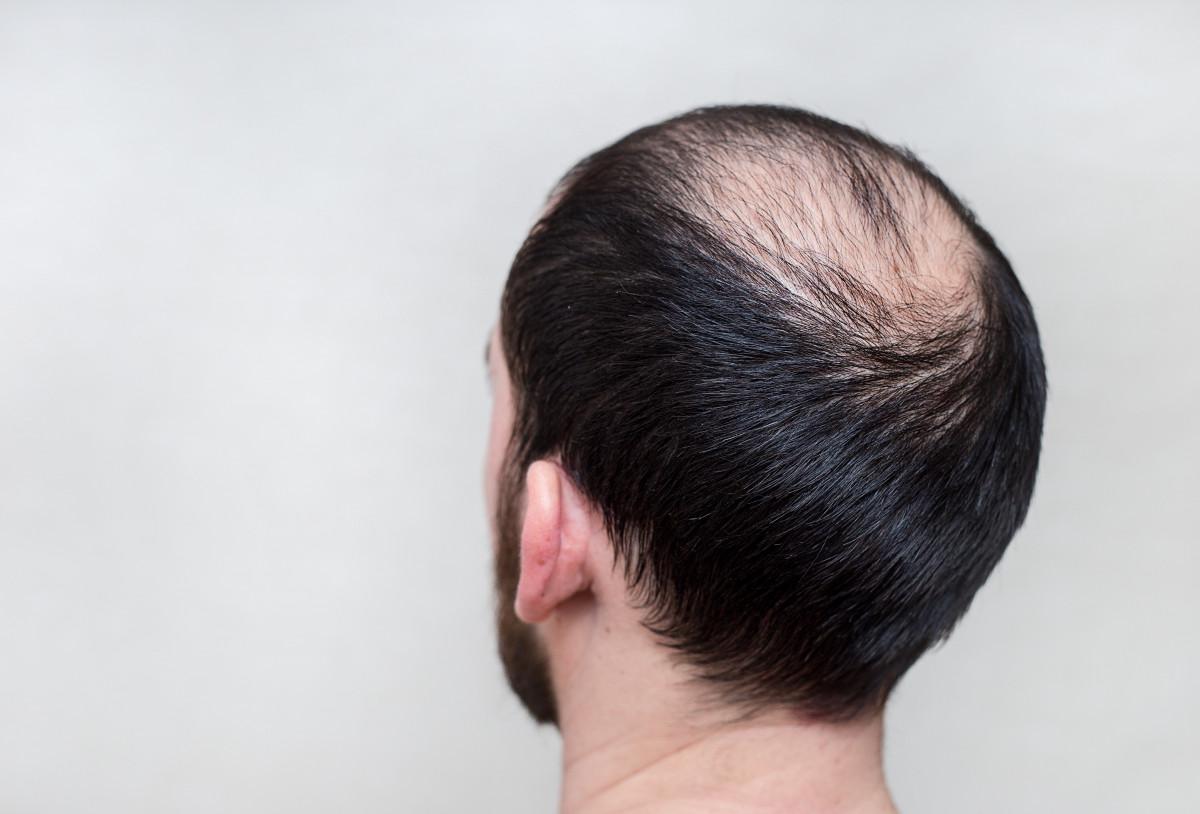 Haarausfall So Starken Sie Ihre Haare