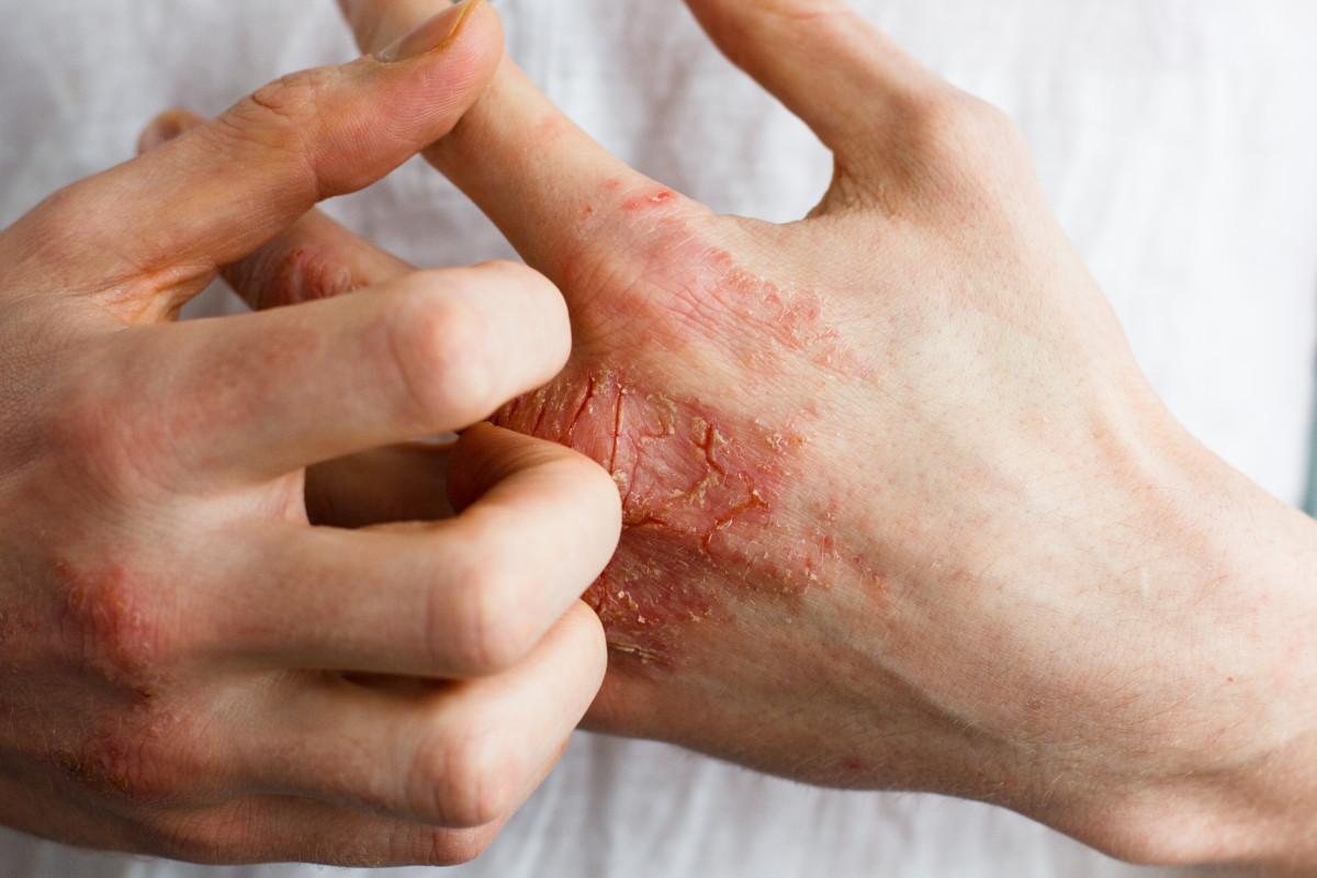 Neurodermitis erkennen, behandeln und vorbeugen