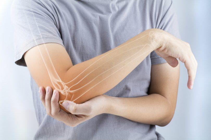 Symphytum: Schnelle Heilung nach Knochenbruch
