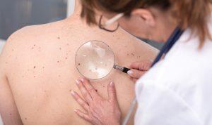 Gesundheit: Wie hoch ist Ihr Hautkrebs-Risiko?