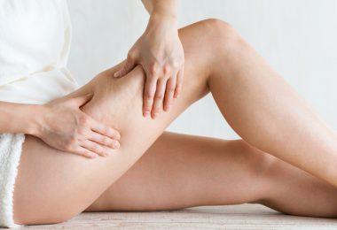 Cellulite: Hilft teuere Cellulite-Creme gegen die unbeliebten Dellen?