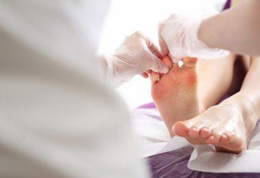 Checkliste: Gesundheit - So mindern Sie das Risiko einer Fußpilzerkrankung.