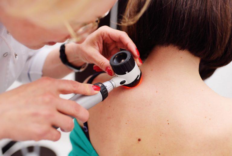 Checkliste: So senken Sie Ihr Hautkrebsrisiko