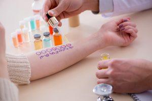 Allergie: Kontaktallergie durch Hautkontakt mit einem Allergen