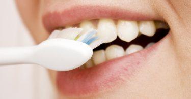 Checkliste: So putzen Sie Ihre Zähne richtig