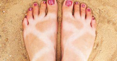 Sonnenbrand: Die Behandlung durch Hausmittel bringt Linderung