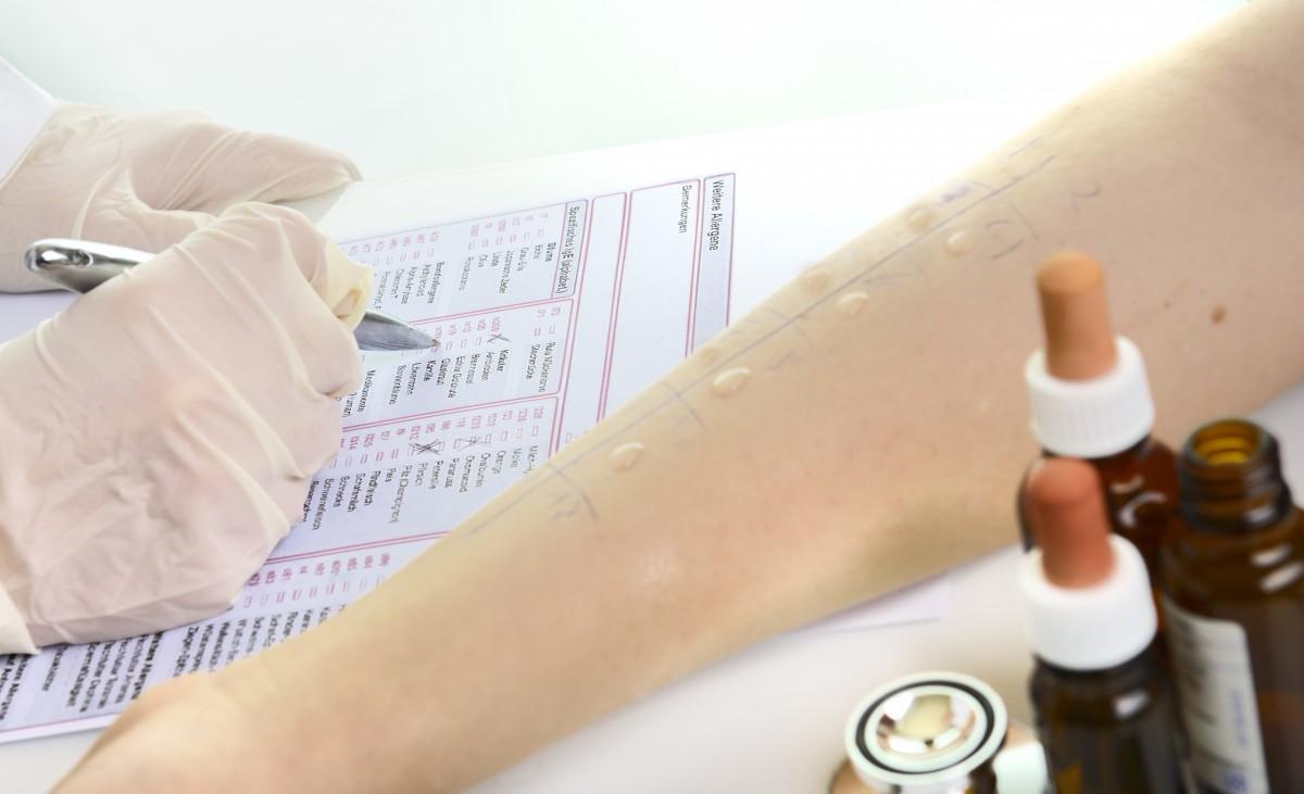 Histaminintoleranz: Tipps zur Ernährung