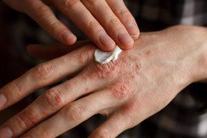 Trockene Haut: Diese Tipps helfen!