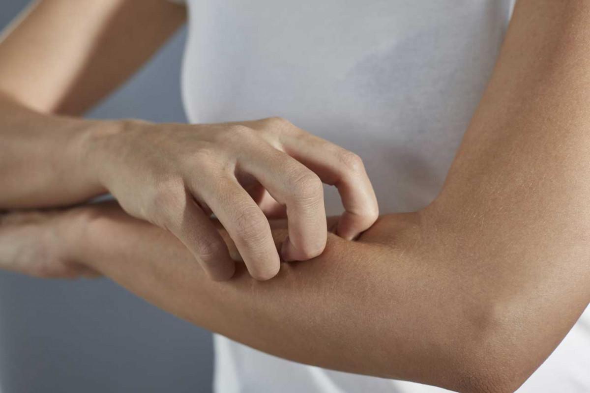 Krätze erkennen und heilen: Schnelle Hilfe naht!