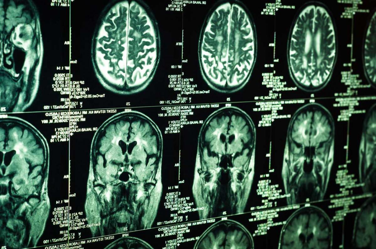 Hirntumor: Anzeichen und Symptome