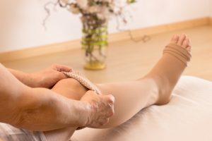 Krampfadern: Symptome und Anzeichen