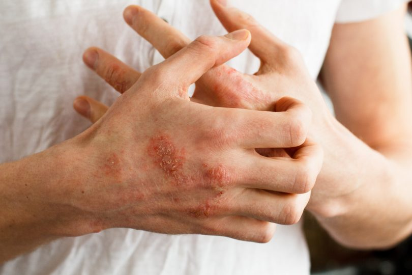 Neurodermitis: Erste Hilfe bei Juckreiz und Hautausschlag