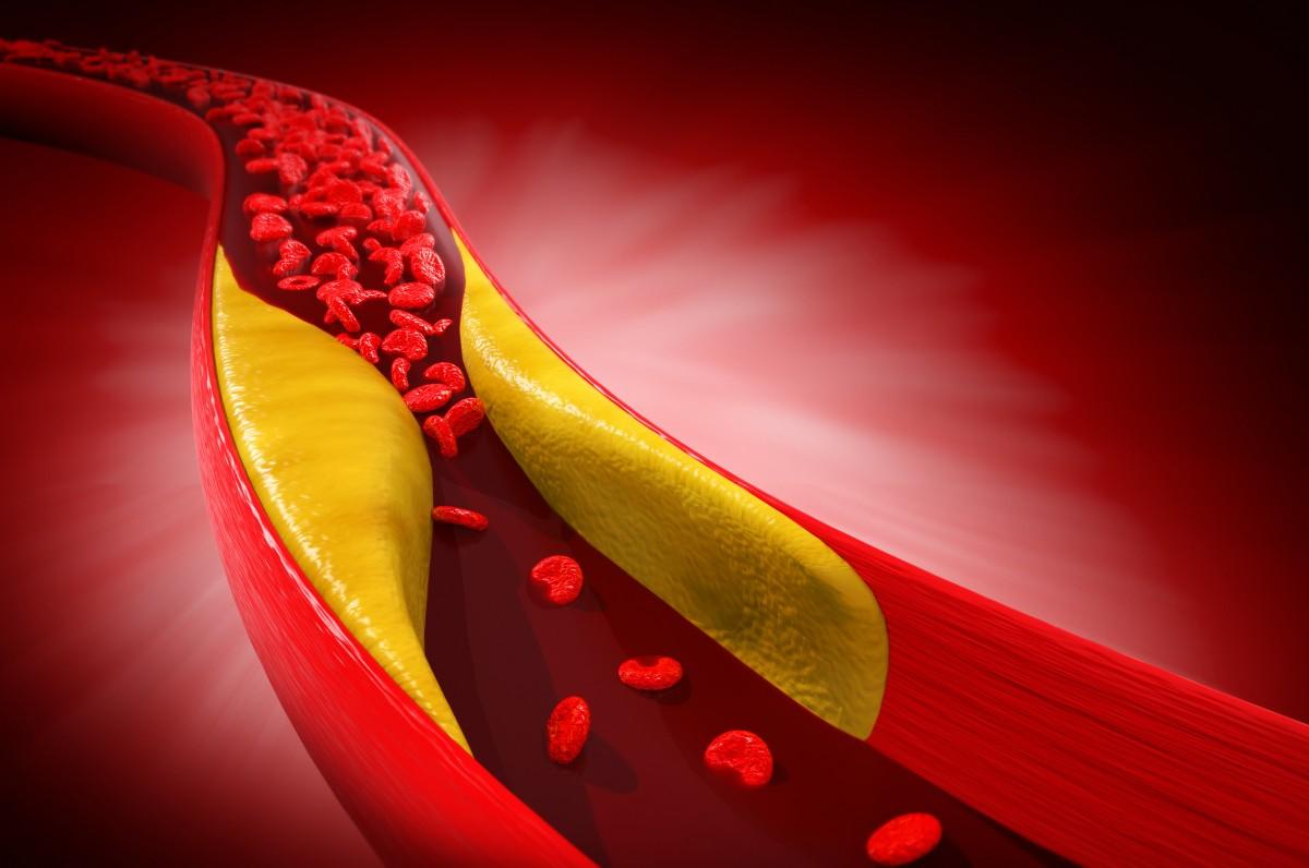 HDL-Cholesterin senkt das Krebsrisiko
