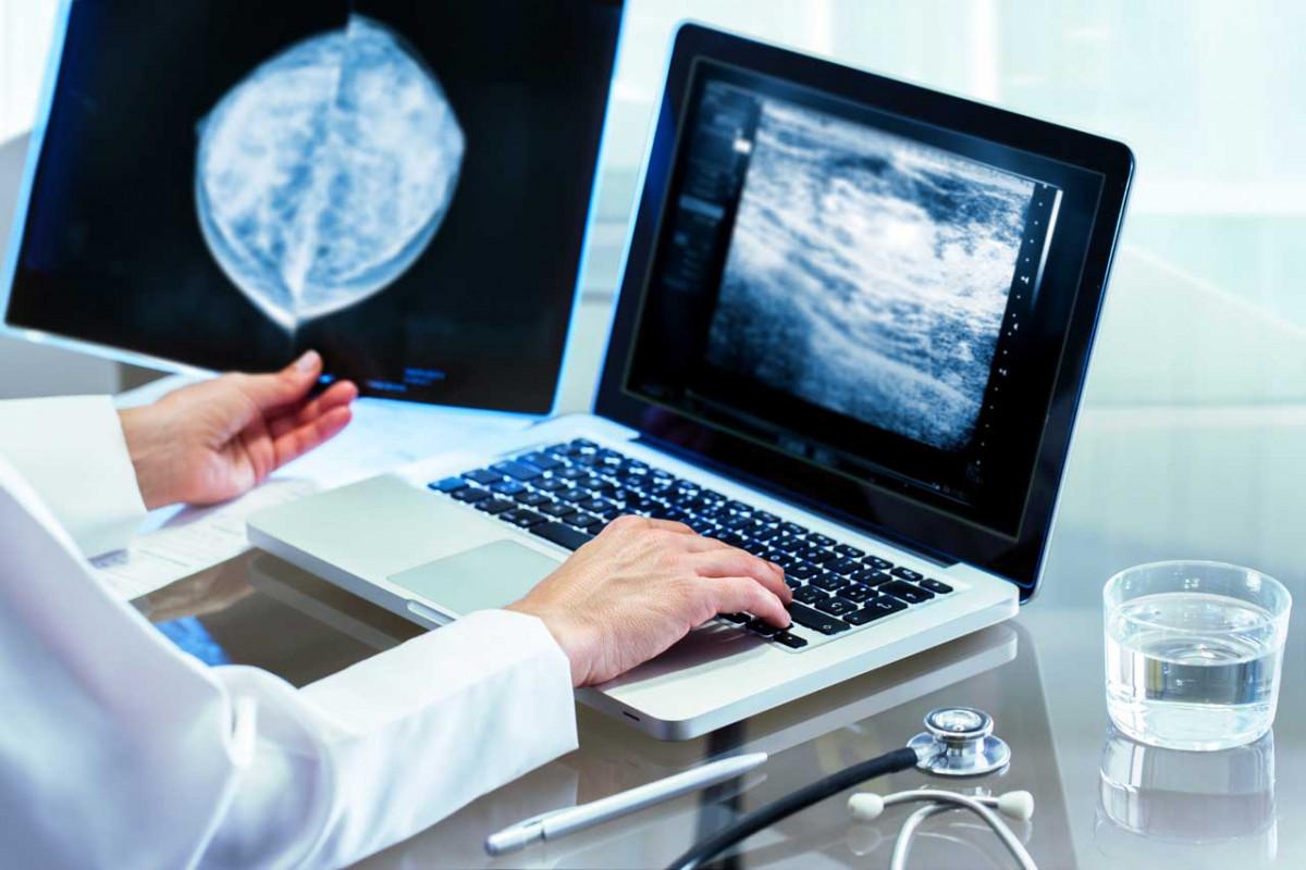 Verdacht auf Brustkrebs - Erste Brustkrebsuntersuchungen