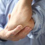 Hüftschmerzen: Schleimbeutelentzündung