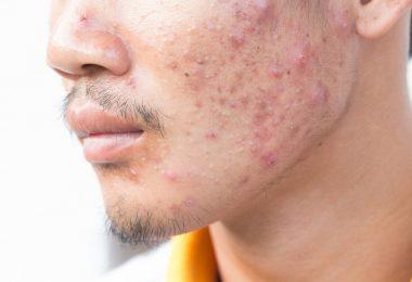 Akne homöopathisch behandeln