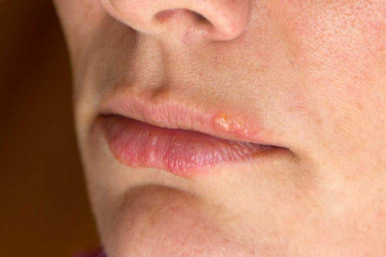 Homöopathie bei Herpes: Eine Hautkrankheit mit vielen Gesichtern