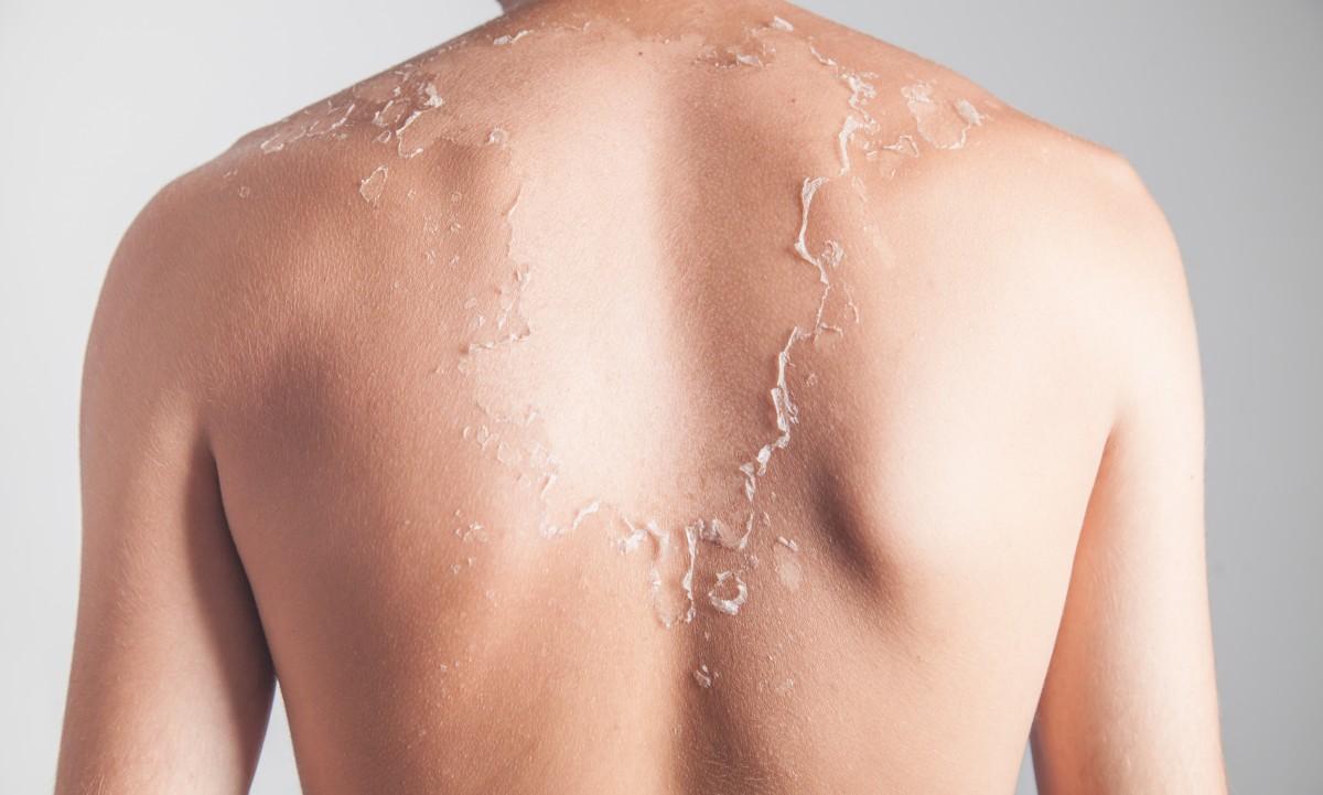 Sonnenbrand – Wie viel Sonne verträgt unsere Haut?
