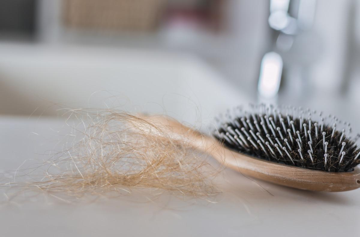 Haarausfall bei Frauen: Welche Behandlung gibt es?
