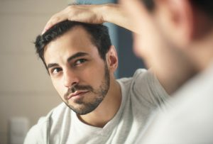 Finasterid zur Behandlung von männlichem Haarausfall?