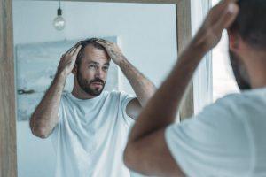 Androgenetischer Haarausfall beim Mann – Symptome und Behandlung