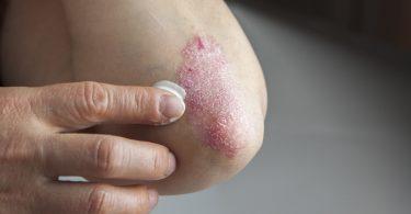 Psoriasis behandeln: Graphites, Sepia und Sulfur