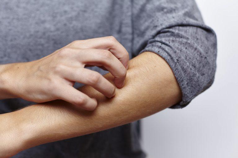 Neurodermitis: Wenn Stress zum großen Jucken führt