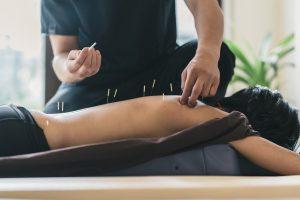 Übernimmt die Krankenkasse Akupunktur-Leistungen?