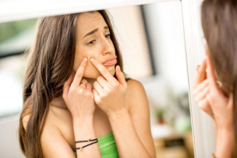 Welche homöopathischen Mittel helfen bei Akne vulgaris?