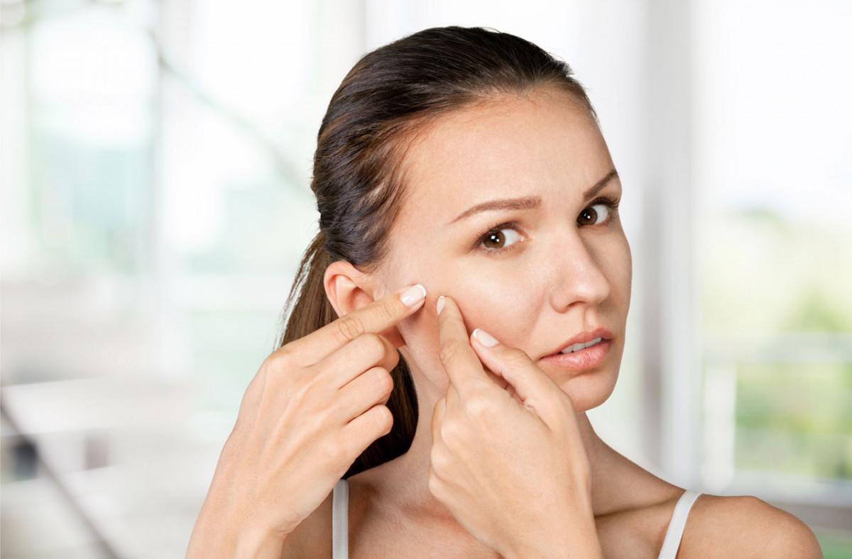 Akne vulgaris homöopathisch behandeln