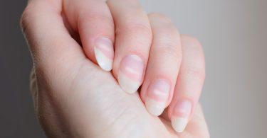 Flecken auf den Nägeln – Was Sie dagegen tun sollten