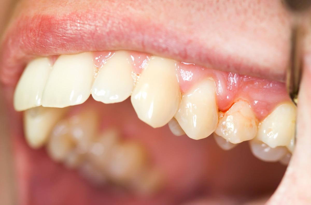 Zahnfleischentzündung homöopathisch behandeln