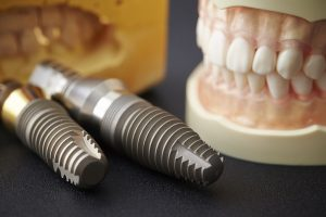Probleme mit Zahnimplantaten vermeiden