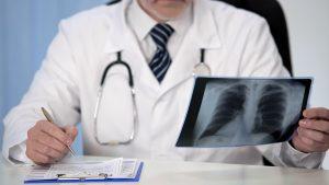 Chronische Bronchitis mit Homöopathie behandeln
