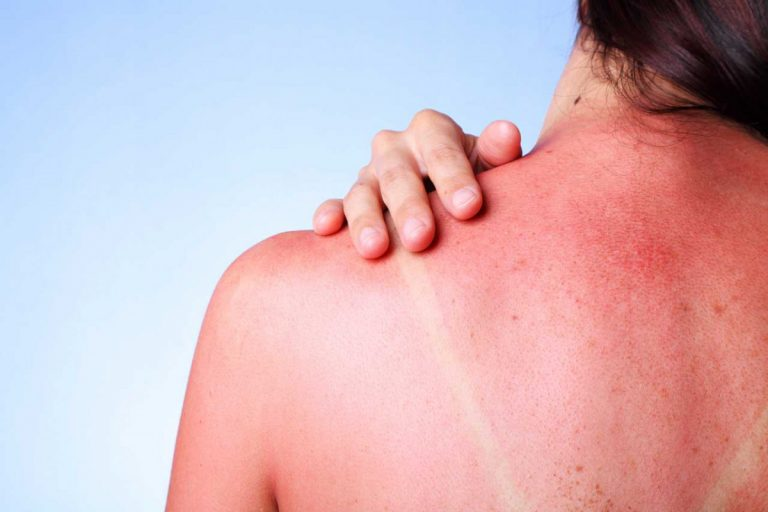 Sonnenbrand homöopathisch behandeln