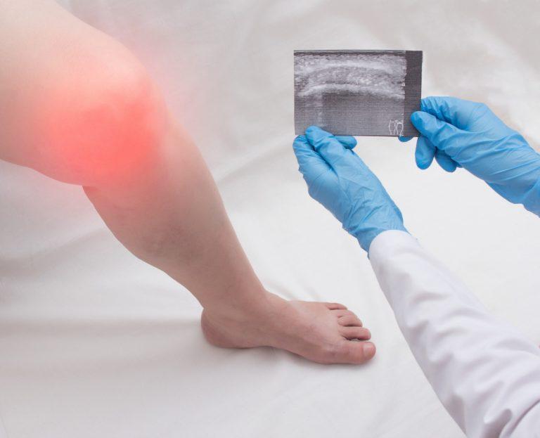 Synovitis: Behandeln Sie auch die psychosomatischen Ursachen