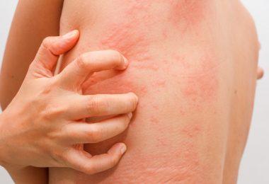 Akute Urtikaria homöopathisch behandeln