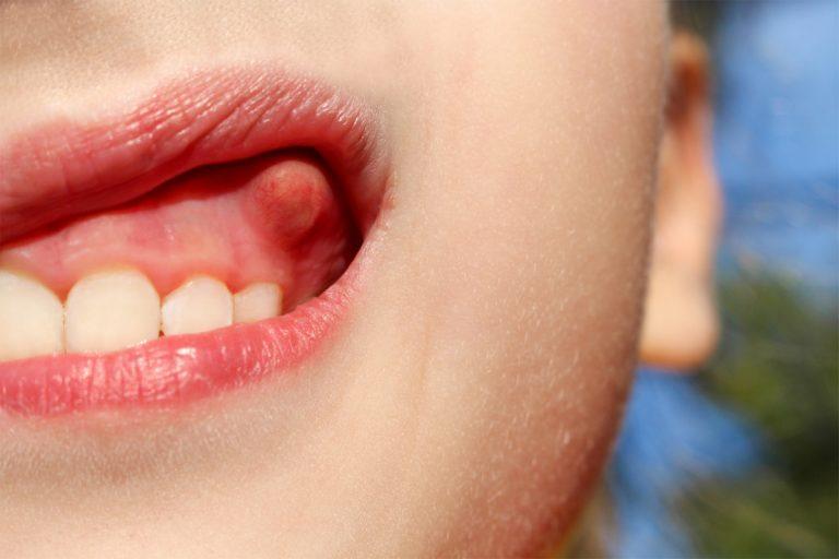 Homöopathie hilft bei Abszessen