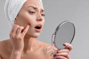 Die größten Irrtümer: Zahnpasta hilft gegen Pickel